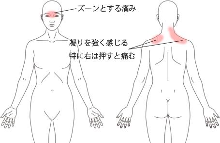 鍼治療・活法整体による頭痛の改善例
