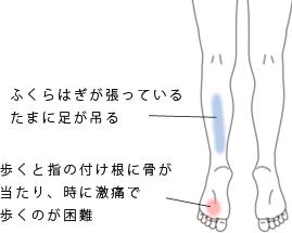 鍼・活法整体治療で改善したモートン病の症例