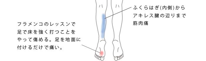 鍼・活法整体治療で改善した足底痛の症例