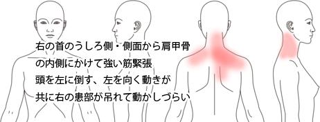 鍼治療・活法整体による肩凝り・頸肩腕症候群の改善例
