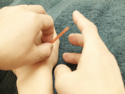 手のツボに鍼を打つ