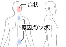 症状とツボ(原因点)