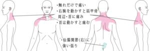 首・肩の痛み(むち打ち)