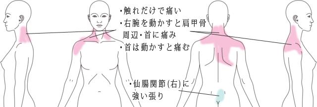 鍼・活法整体治療で改善した肩の痛みの症例