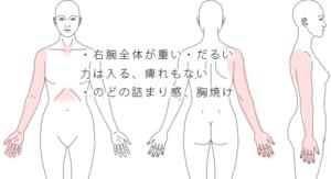 腕が重い+のどの詰まり・胸焼け