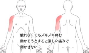 鍼治療で改善した頚・肩の痛みの症例