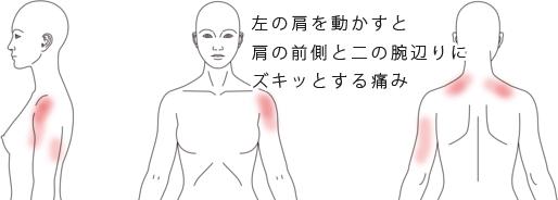鍼治療による五十肩の改善例