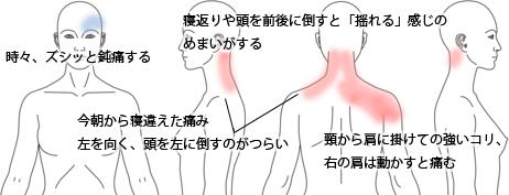 鍼治療で改善しためまい(眩暈)の症例