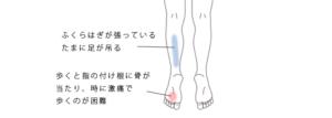 足の指の付け根が痛む
