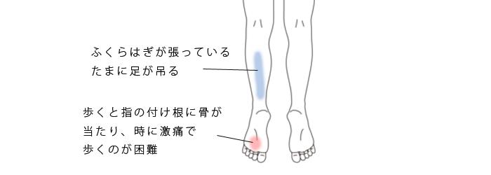 鍼・活法整体で改善したモートン病・足底腱膜炎の症例(治療例)