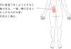 鍼・活法整体治療で改善した腰痛の症例
