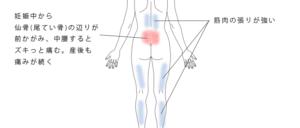 尾てい骨周辺の痛み