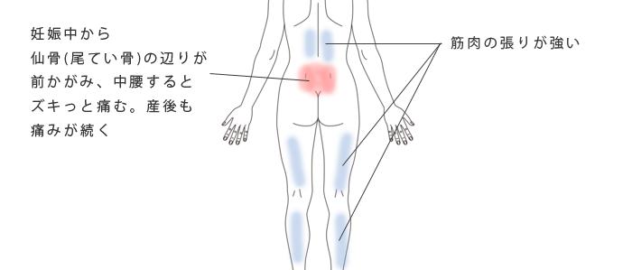 鍼・活法整体で改善した腰痛の治療例