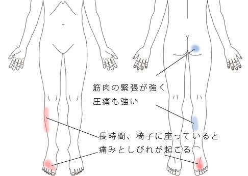 鍼・活法整体治療で改善した坐骨神経痛の症例