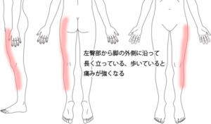 臀部・足の外側の痛み