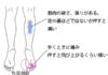 鍼治療・活法整体で改善した足の裏の痛み