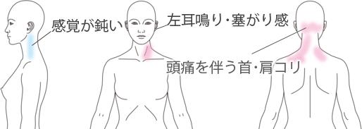 鍼施術による頭痛・耳鳴り・肩こりの改善例