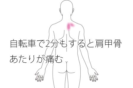 鍼治療による肩甲骨の痛みが改善された治療例
