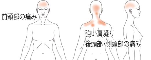 頭痛・片頭痛が改善した鍼治療の症例