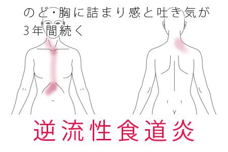 鍼治療による逆流性食道炎の改善例1