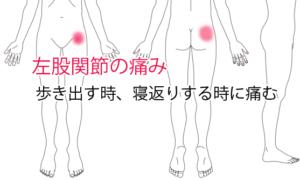 股関節痛治療例1「歩き始め、寝返りで痛い」