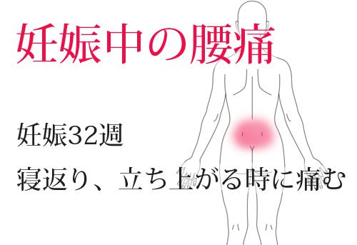鍼治療による妊娠中の腰痛改善例