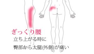 ぎっくり腰「立ち上がる時に臀部から太腿に痛み」