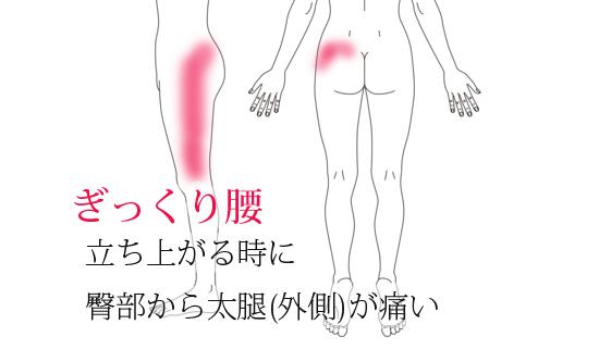 ぎっくり腰・鍼治療による改善例