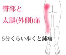 5分くらい歩くと臀部から太腿(外側)に鈍痛