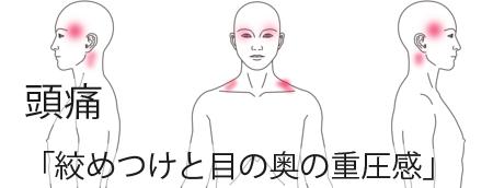 鍼治療による片頭痛の治療例