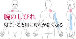 鍼治療による腕のしびれの改善例