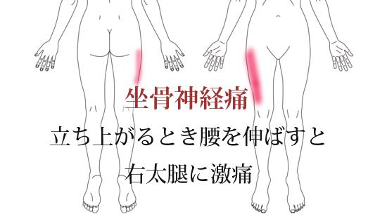 鍼治療で改善した坐骨神経痛の治療例