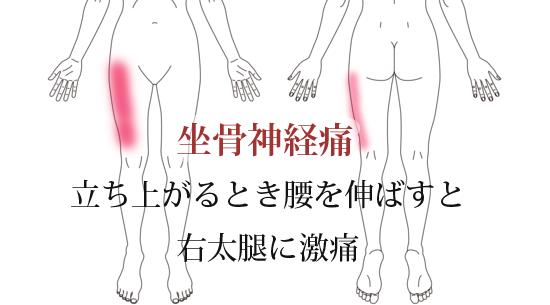 鍼治療による坐骨神経痛の改善例