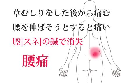 鍼治療で改善した腰痛の治療例