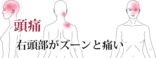 鍼施術による頭痛の改善例