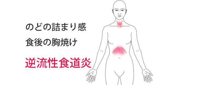 鍼治療により改善した逆流性食道炎の症例