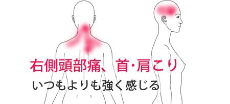 右側頭部痛・肩こりの鍼施術による改善例