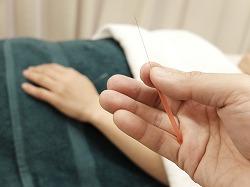 鍼治療で使うハリ