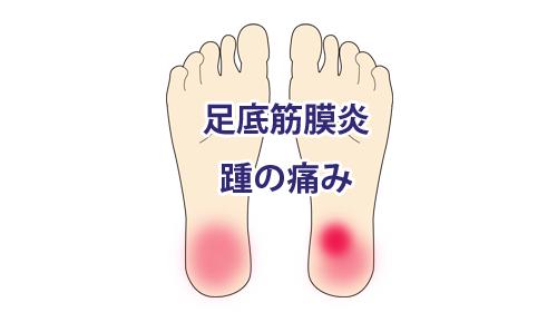 鍼治療による足底筋膜炎の改善例