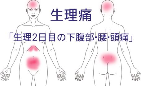 生理痛の鍼灸治療による改善例