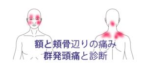 額と頬骨あたりの痛み(群発性頭痛)