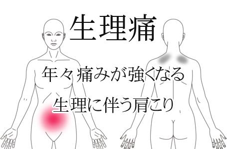 鍼施術による生理痛の改善例