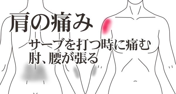 鍼施術によるテニス肩の症例