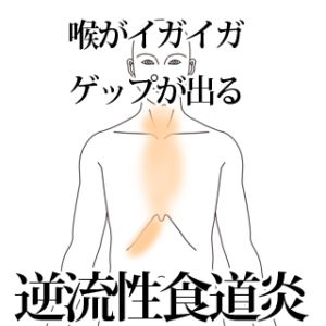 埼玉県志木市のいろは治療院による逆流性食道炎の改善例