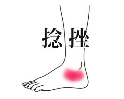 鍼施術による捻挫の改善例